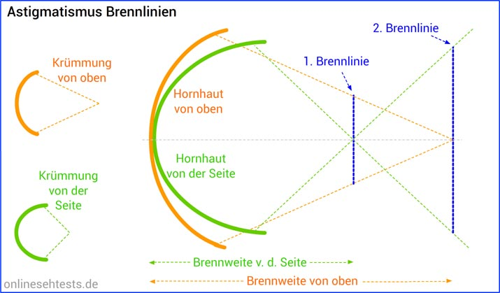 Astigmatismus: Brennpunkte / Brennlinien