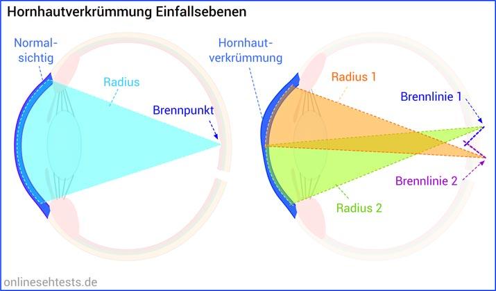 Astigmatismus (Hornhautverkruemmung) Einfallsebenen