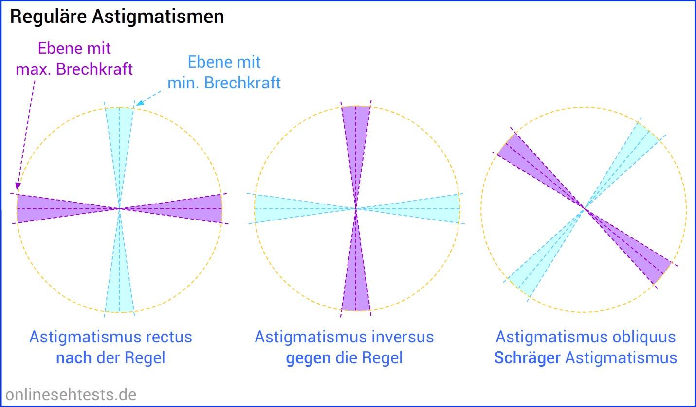 Astigmatismus (Stabsichtigkeit)